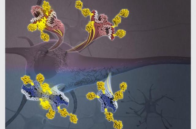 Tau protein and Alzheimer's disease